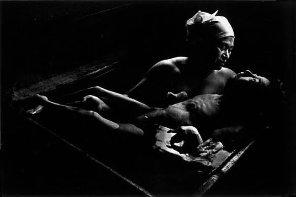 In utero exposure to toxic monomethylmercury can have severe neurological and developmental consequences. Here, a woman in Japan holds her daughter who has been debilitated by methylmercury poisoning during the Minamata Disease outbreak.